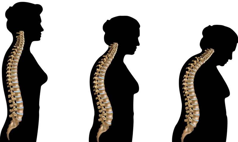 CBD και Οστεοπόρωση : Η φυσική ουσία που γίνεται σύμμαχός σου